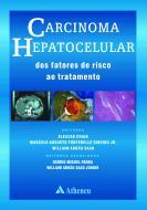 Carcinoma Hepatocelular - Dos Fatores de Risco ao Tratamento