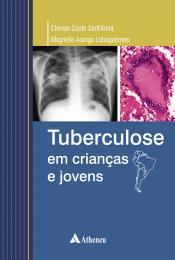 Tuberculose em Crianças e Jovens