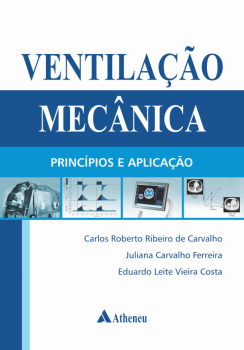 Ventilação Mecânica - Princípios e Aplicação