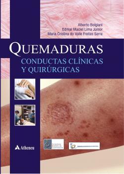 Quemaduras Conductas Clinicas Y Quirurgicas